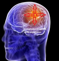 Brain and Nerve Tumours leading to Headache or Migraine