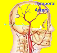 temporal artey and arteritis