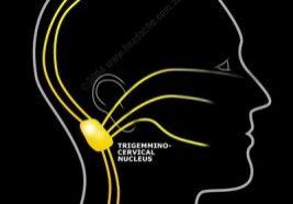 headache, migraine, neck pain, trigger points, muscle pain