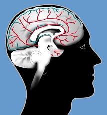 Nerve infections such as Meningitis