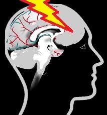 Head trauma and headaches