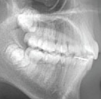 dental pain, tooth decay, abscesses and headaches