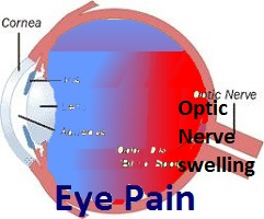 Optic Nerve irritation and swelling