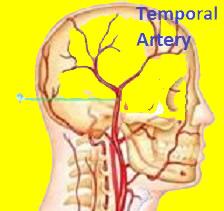 temporal artey and arteritis