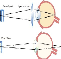 EyeStrain, refractive errors and visual acuity